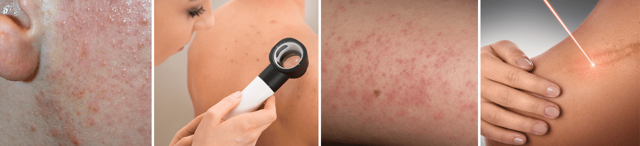 International Journal of Dermatology Research